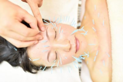 日本でも話題!「美容鍼灸」モニターだけの特別価格!